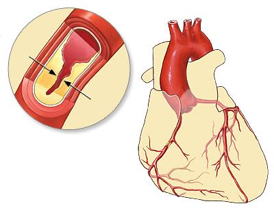 Ишемическая болезнь сердца — Википедия