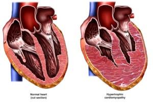 Лечение кардиомиопатии в Москве