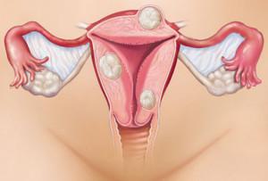 Лечение эндометриоза в Москве