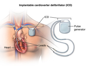 Имплантация кардиовертеров-дефибрилляторов в Москве