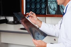 Лечение остеомиелосклероза в Москве