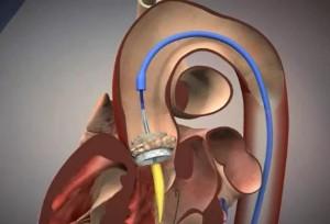 Имплантация клапана с помощью катетера в Москве